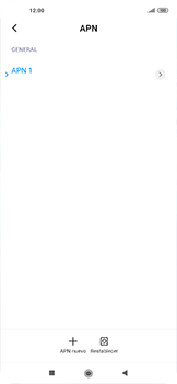 Configurar internet - Xiaomi Mi 10 5G - Passo 6